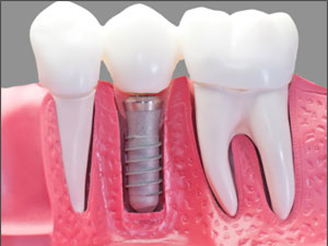 Dental Implants in Saginaw