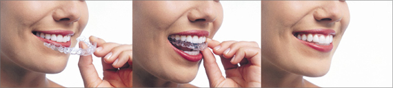 Invisalign Teen in Saginaw MI